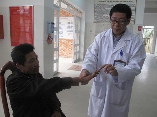 Đà Lạt: Phát hiện người lang thang mắc bệnh phong tổn thương nặng - Ảnh 1
