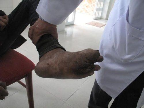 Đà Lạt: Phát hiện người lang thang mắc bệnh phong tổn thương nặng - Ảnh 3
