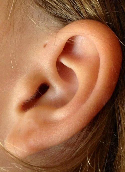 Tại sao nhiều người có lỗ nhỏ ở vành tai? - Ảnh 2