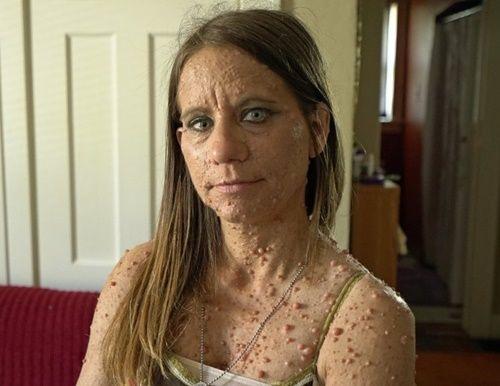 Người phụ nữ khốn khổ sống với gần 6.000 khối u khắp cơ thể - Ảnh 1