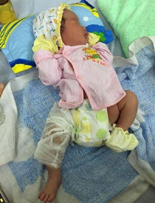 Vụ làm gãy xương đùi trẻ sơ sinh: Bệnh viện nhận sai sót - Ảnh 1