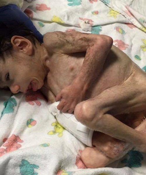 Em bé bị bỏ đói 7 năm liền trong trại trẻ mồ côi giờ ra sao? - Ảnh 1