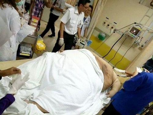 Người đàn ông béo phì phải nhập viện bằng xe tải hạng nặng - Ảnh 3