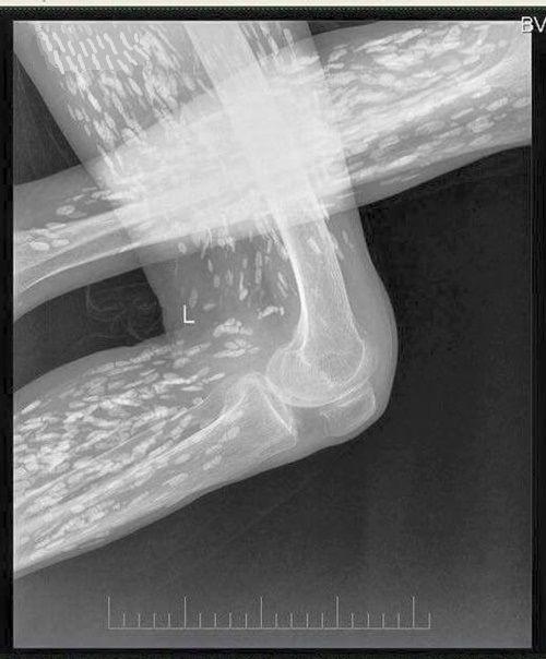 Bác sĩ chia sẻ hình ảnh người bị nhiễm sán kinh hoàng - Ảnh 2