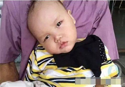 Bé 8 tháng tuổi bị thiểu năng chỉ vì thói quen hàng ngày này của mẹ - Ảnh 1
