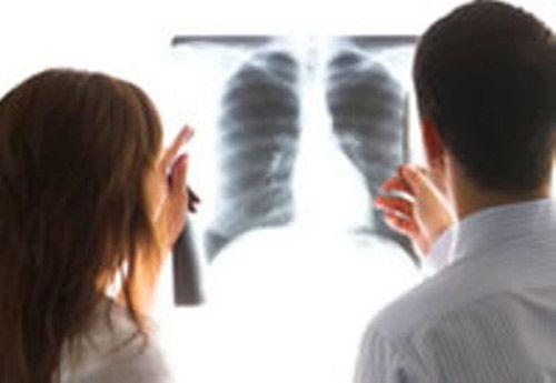 Bệnh nhân ung thư phổi di căn khắp cơ thể vẫn chữa khỏi - Ảnh 1