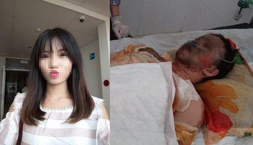 Cô gái xinh đẹp bị bỏng toàn thân, mặt biến dạng sau tai nạn - Ảnh 1