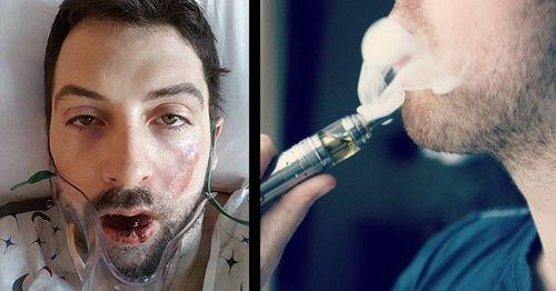 Mất gần hết hàm răng kèm bỏng nặng vì thuốc lá điện tử - Ảnh 1