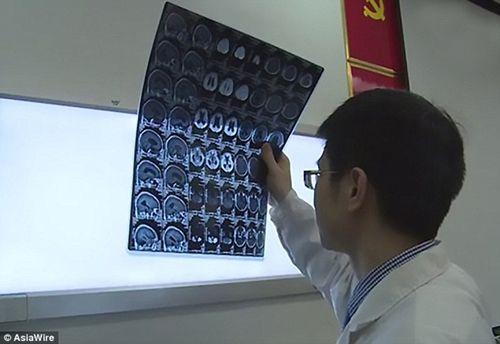 Ham mê món gỏi sống, người đàn ông bị sán làm tổ, đẻ trứng trong não - Ảnh 2