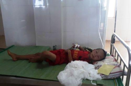 Nghệ An: Bé trai 8 tuổi nguy kịch vì bị ong vò vẽ đốt - Ảnh 1