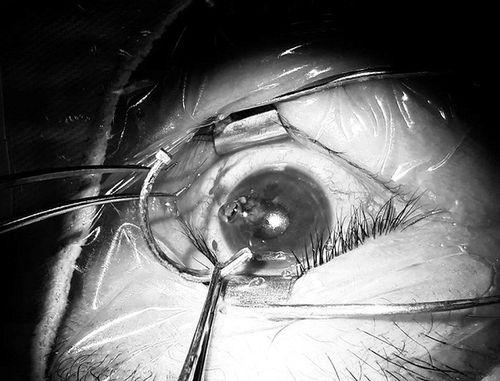 Đáng sợ người đàn ông bị đinh cong dài 2,5 cm cắm sâu trong mắt - Ảnh 1