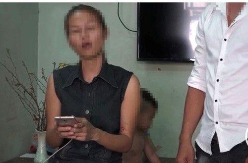 """TP HCM: """"Quà Tết"""" phát nổ, hai mẹ con bị bỏng nặng - Ảnh 1"""