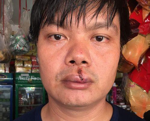 Bị côn đồ đánh rách miệng vì tố cáo ô nhiễm môi trường - Ảnh 1