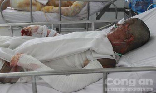 Nạn nhân bị người tình tưới xăng đốt giữa Sài Gòn đã tử vong - Ảnh 1