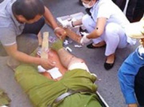 Vận động đi cai nghiện, Thượng tá công an bị con nghiện đánh gãy xương - Ảnh 1