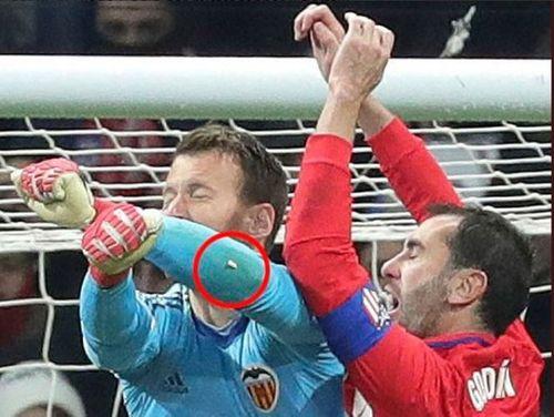 Chiến thắng Valencia, cầu thủ Atletico Madrid gãy răng vì va chạm - Ảnh 1