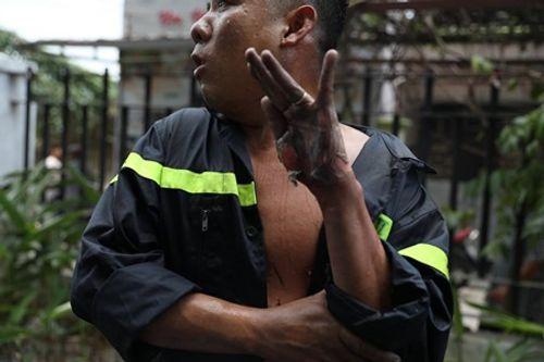 Vụ cháy chung cư Carina: Dân mạng cảm động hình ảnh người lính cứu hỏa bị bỏng lột bàn tay - Ảnh 1