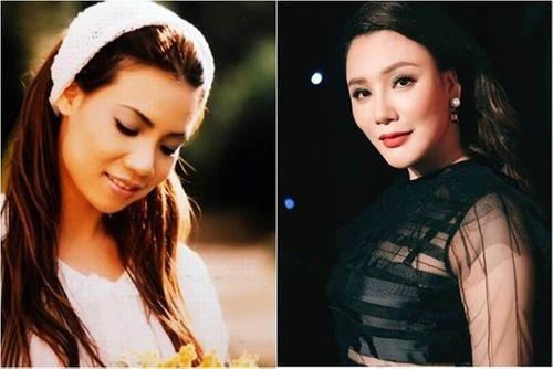 Cận cảnh sự thay đổi đáng kinh ngạc của sao Việt sau phẫu thuật thẩm mỹ - Ảnh 7