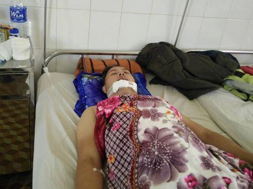 Đắk Lắk: Kẻ trộm xe táo tợn tông bị thương công an viên hòng tẩu thoát - Ảnh 1