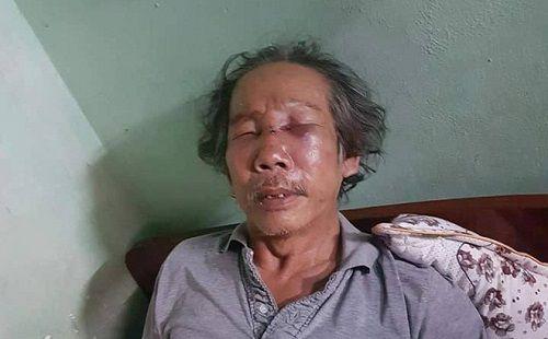 Bảo vệ chung cư đánh cụ ông gần 70 tuổi gãy mũi - Ảnh 1