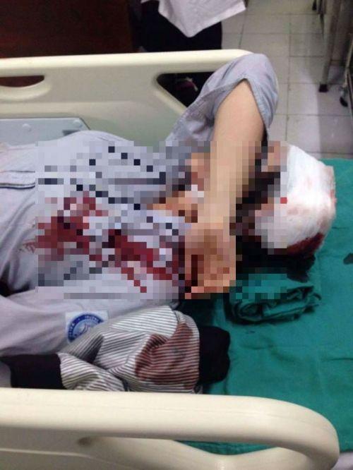 Bị bạn đánh vào đầu, nữ sinh Hà Nội nhập viện cấp cứu - Ảnh 1