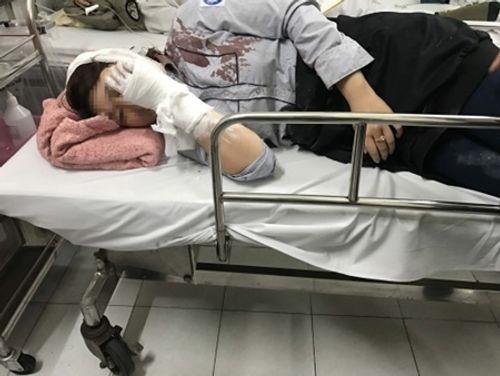 Lời kể của nữ sinh bị đánh vào đầu phải nhập viện Bạch Mai cấp cứu - Ảnh 1