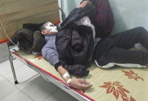 Nam sinh Hà Tĩnh bị bỏng nặng vì dùng bật lửa thử bình xăng - Ảnh 1