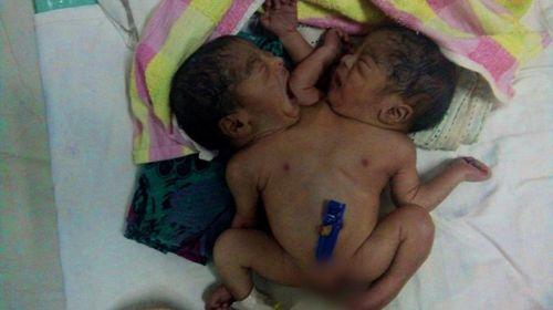 Cặp song sinh dính liền bị bố mẹ bỏ rơi trong bệnh viện - Ảnh 1