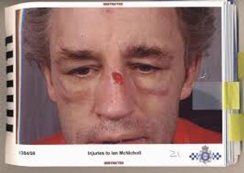 Người đàn ông bị bạn gái đánh đập chỉ vì từ chối quan hệ - Ảnh 1