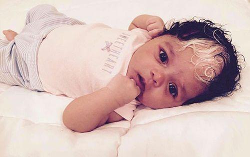 Kỳ lạ em bé sinh ra với hai màu tóc, hai màu da - Ảnh 4