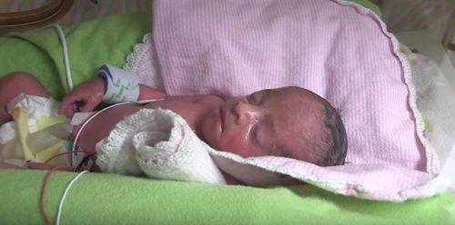Mới mang bầu đã thấy nhiều vết thâm tím, bà mẹ 'sốc nặng' khi nhận tin từ bác sĩ - Ảnh 5