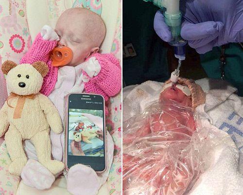 Sinh sớm hơn 3 tháng, em bé này sống sót thần kỳ nhờ một chiếc túi - Ảnh 1