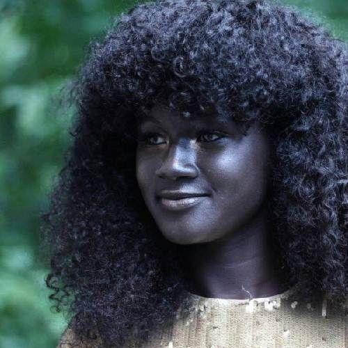 Cô gái trẻ có làn da đen kỳ lạ nhất thế giới - Ảnh 1