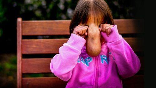 """Hình ảnh bé gái có gương mặt """"quái vật"""" sau khi được phẫu thuật - Ảnh 3"""
