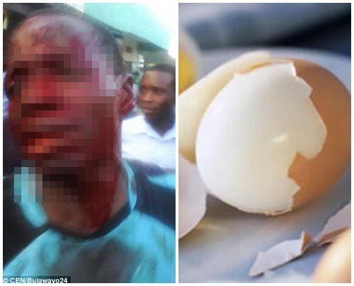 Người đàn ông bị đánh tơi tả vì gạ tình bằng… quả trứng - Ảnh 1