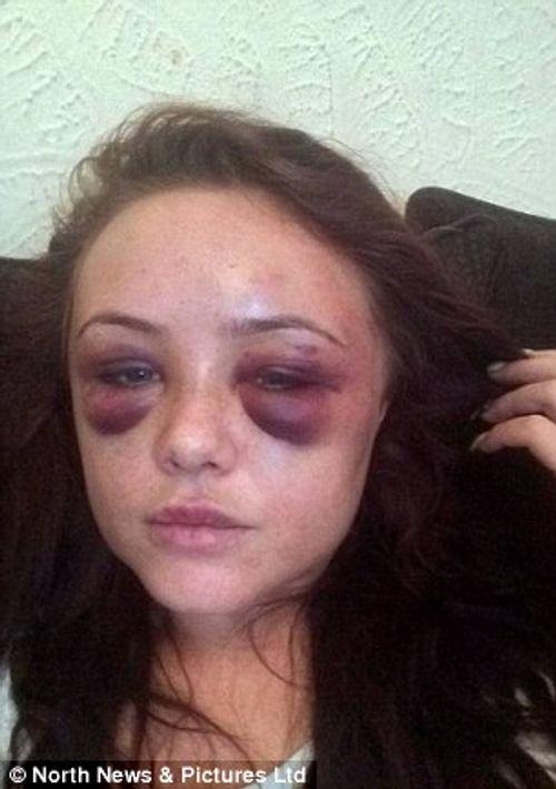 Người phụ nữ bị bạn trai cuồng ghen đánh gãy răng và xương sườn - Ảnh 3