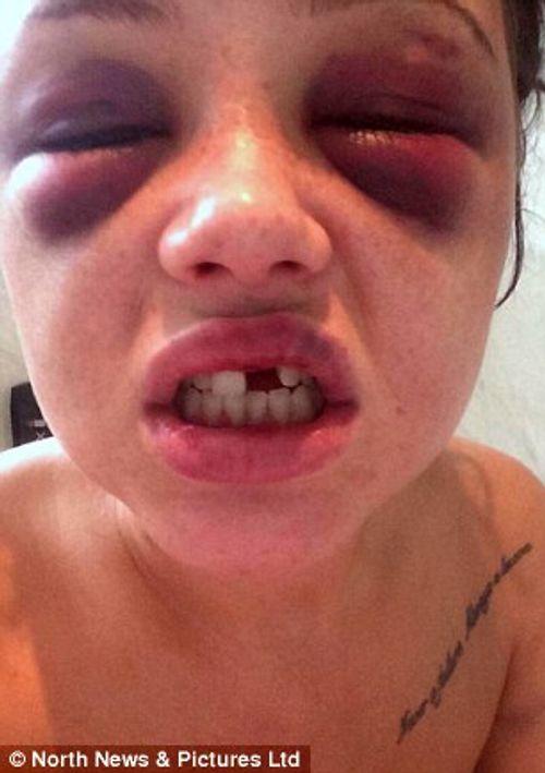 Người phụ nữ bị bạn trai cuồng ghen đánh gãy răng và xương sườn - Ảnh 4