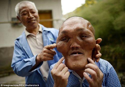 Chàng trai có khuôn mặt kỳ dị bị nhầm là người ngoài hành tinh - Ảnh 1