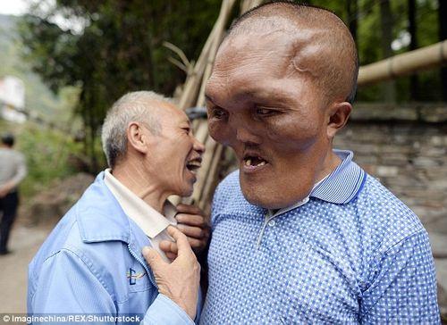 Chàng trai có khuôn mặt kỳ dị bị nhầm là người ngoài hành tinh - Ảnh 3
