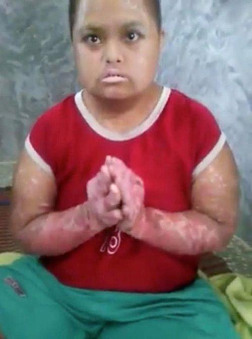 Bé gái mất khả năng đi lại, biến đổi màu da chỉ vì vết muỗi cắn 2 năm trước - Ảnh 1