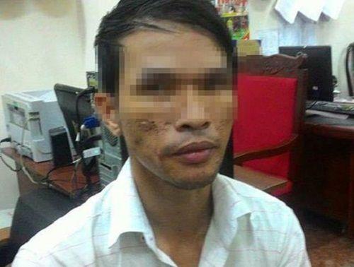 Thanh niên hành hạ bé trai Campuchia đã bị bắt - Ảnh 1