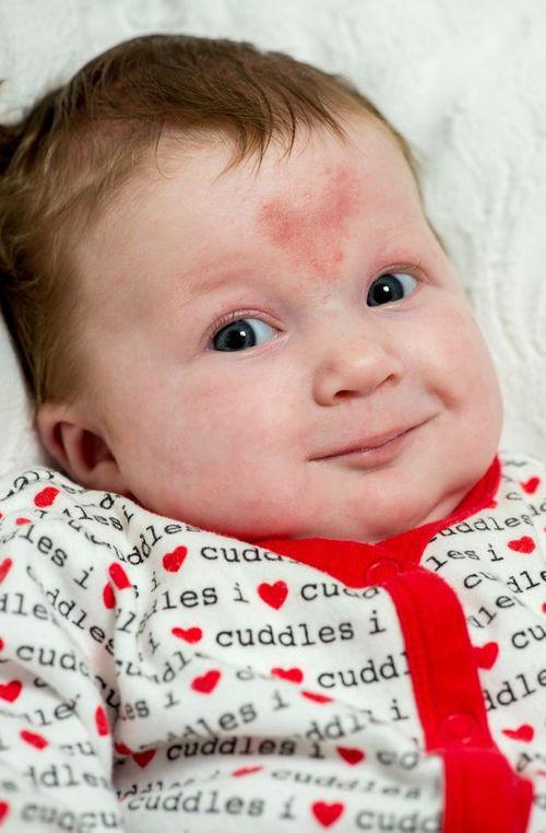 Kì lạ em bé có hình bớt trái tim khi được thụ thai vào ngày Valentine - Ảnh 2