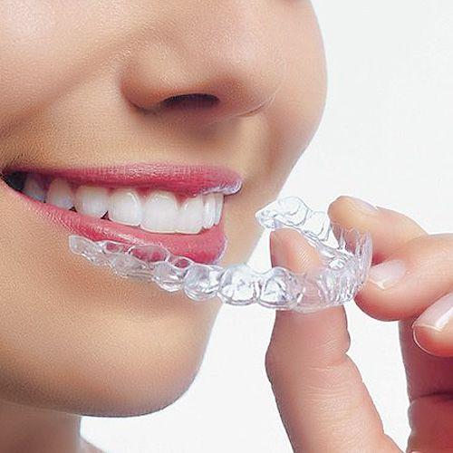 Mách bạn cách làm trắng răng bị ố vàng hiệu quả - Ảnh 1