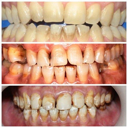 Cách làm trắng răng cho người hút thuốc lá tại nhà - Ảnh 1