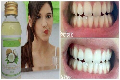 Cách lấy cao răng bằng dầu dừa hiệu quả ngay sau 30 phút - Ảnh 3