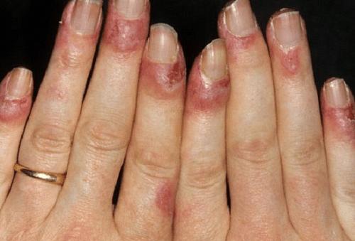 3 cách chữa bệnh cước chân tay vào mùa đông hiệu quả nhất - Ảnh 1