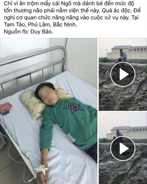 Sự thật thông tin bé trai ăn trộm ngô bị đánh chấn thương sọ não - Ảnh 1