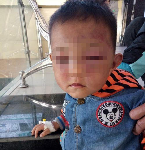 Bé trai 2 tuổi nghi bị cha dượng đánh đập dã man - Ảnh 1