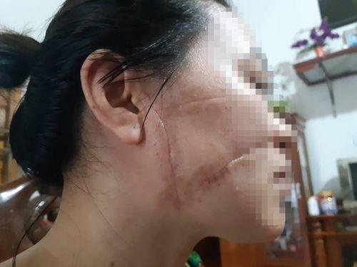 Vụ vợ tố chồng cắt gân, rạch mặt: Người chồng thừa nhận toàn bộ hành vi - Ảnh 1
