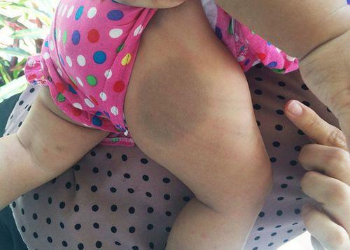 Bé gái 8 tháng tuổi khóc thét, nghi bị mẹ nuôi bạo hành trong phòng trọ - Ảnh 1